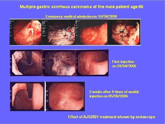 スキルス胃がん 症例|CDC6 shRN...